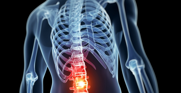 Photo: 3D rendered graphic of a human torso with highlighted backbone;...